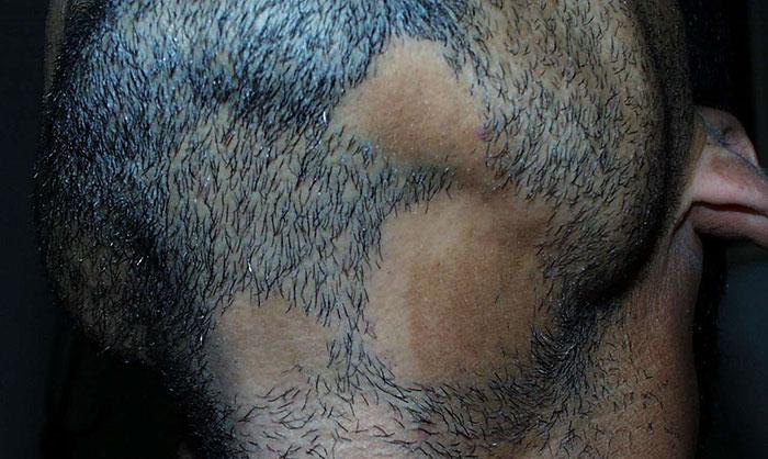 Beard Alopecia Cure Home Remedies