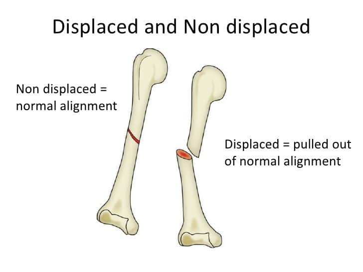 Displaced Fracture | Causes | Symptoms And How To Treat It