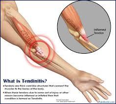 tendonitis vs tendinitis