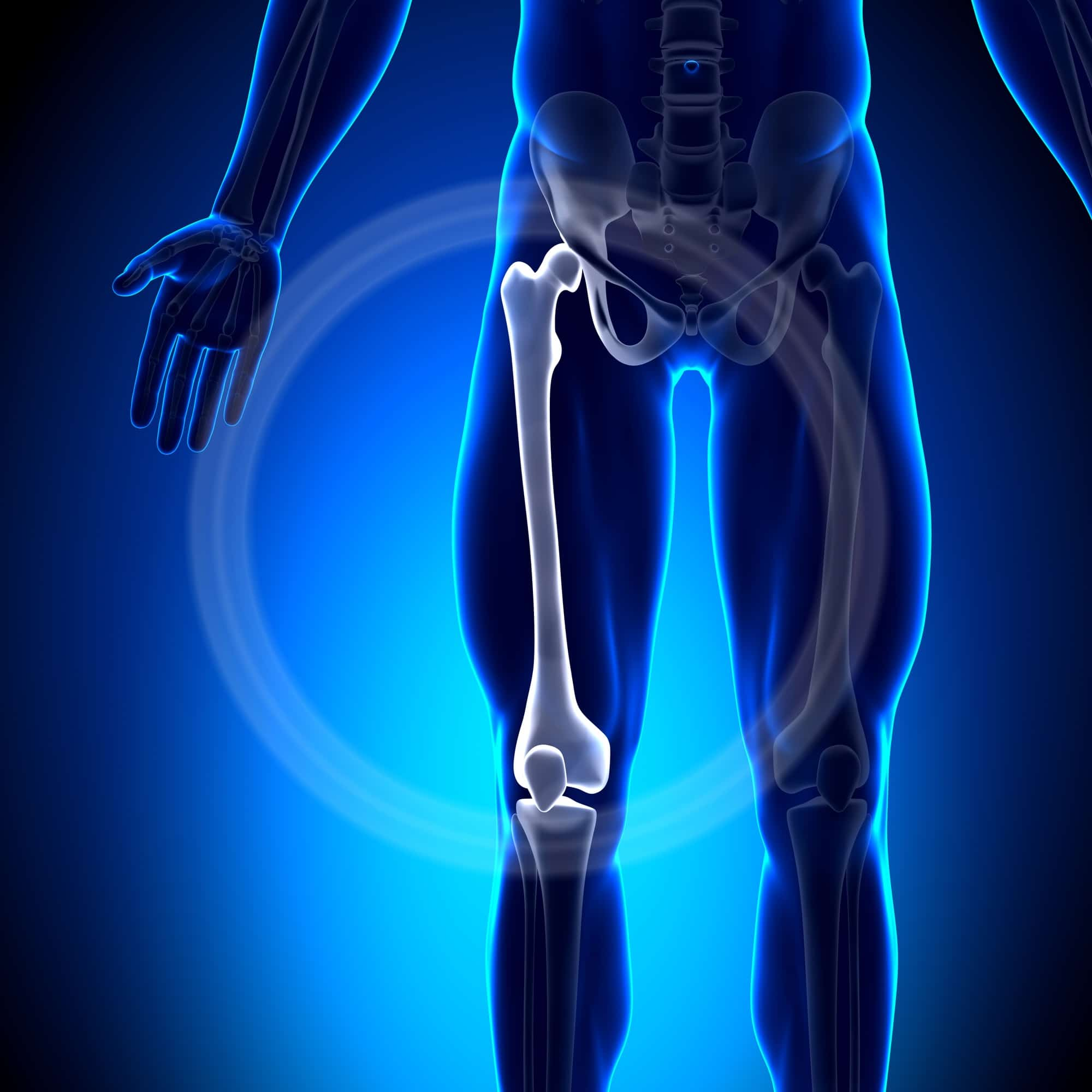 Femur Fracture | Overview, Symptoms, And Treatment