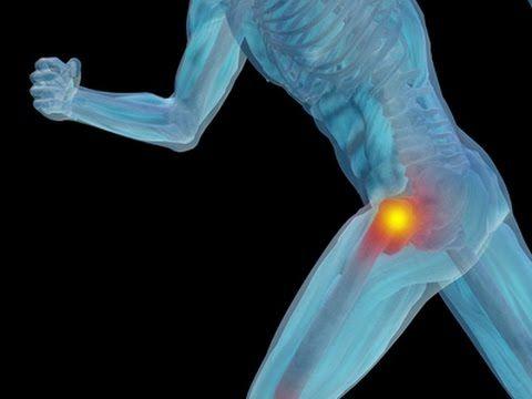 Hip Tendinitis