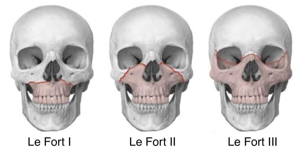 Lefort Fracture