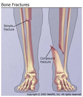 Compound fracture comparison