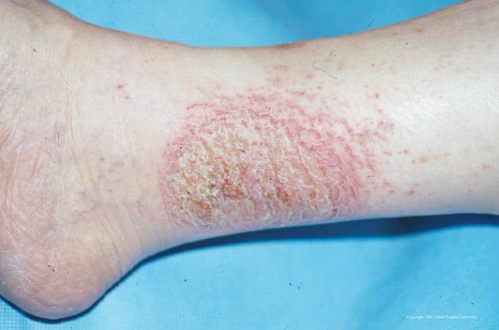 xerotic eczema