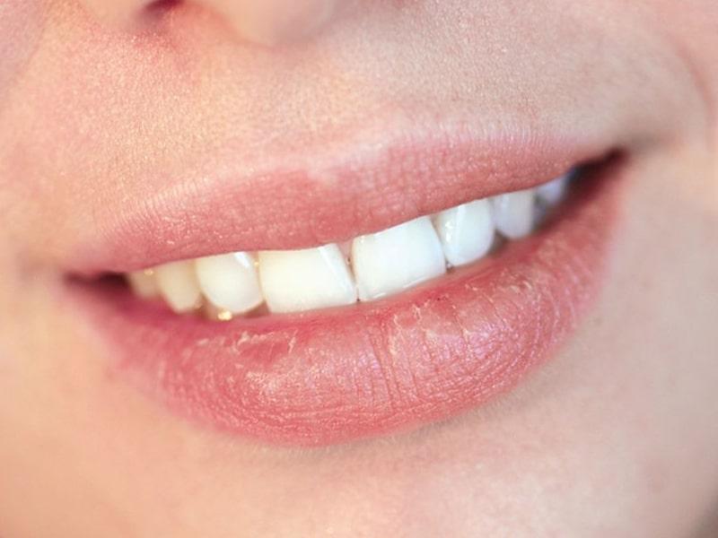 Sunburned Lips