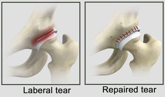Torn Hip Labrum