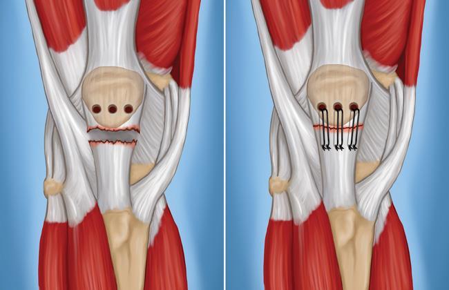Torn Patellar Tendon Medical Overview Causes Symptoms