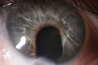 Torn Iris