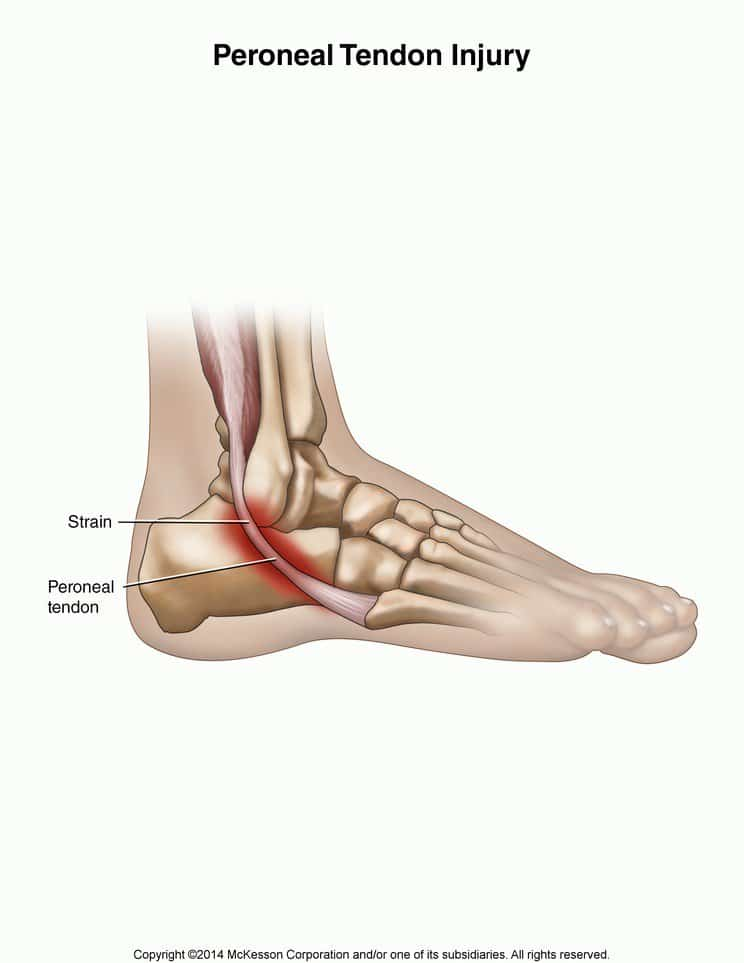 Torn Peroneal Tendon