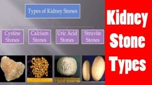 Types of Kidney Stones