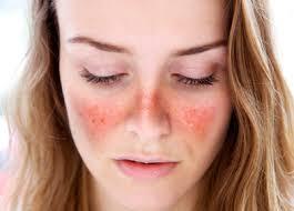 Types of Lupus