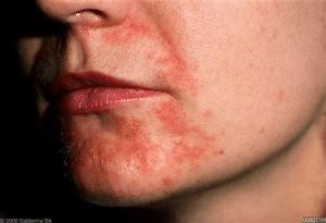 How To Treat Perioral Dermatitis