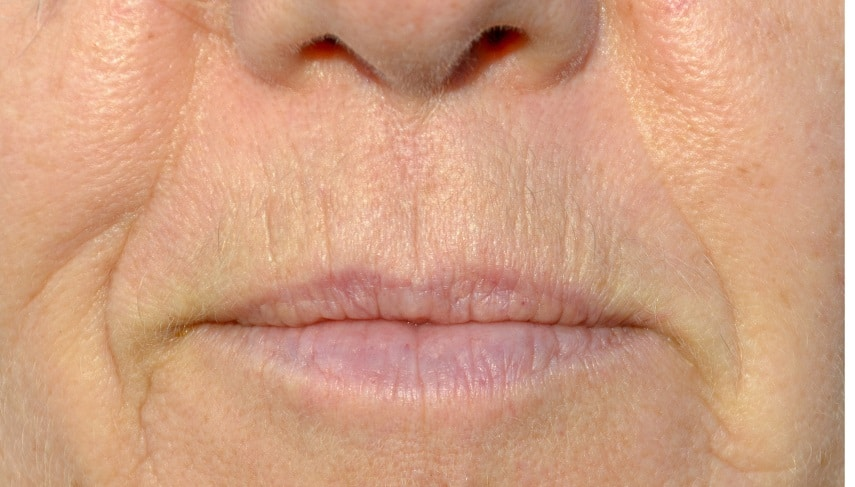 The Best Treatment For Lip Lines 2020