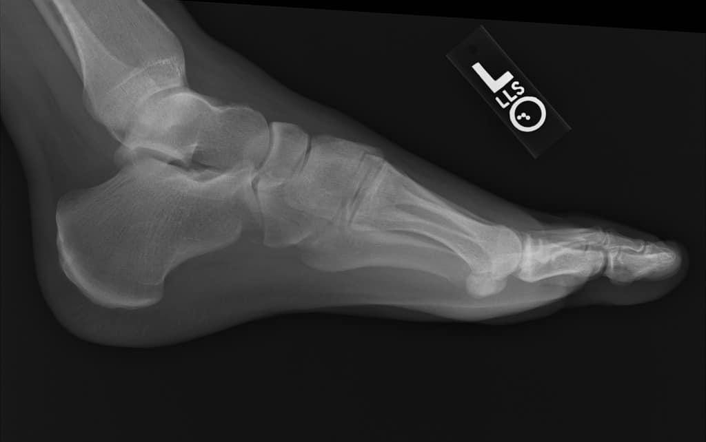cuboid fracture