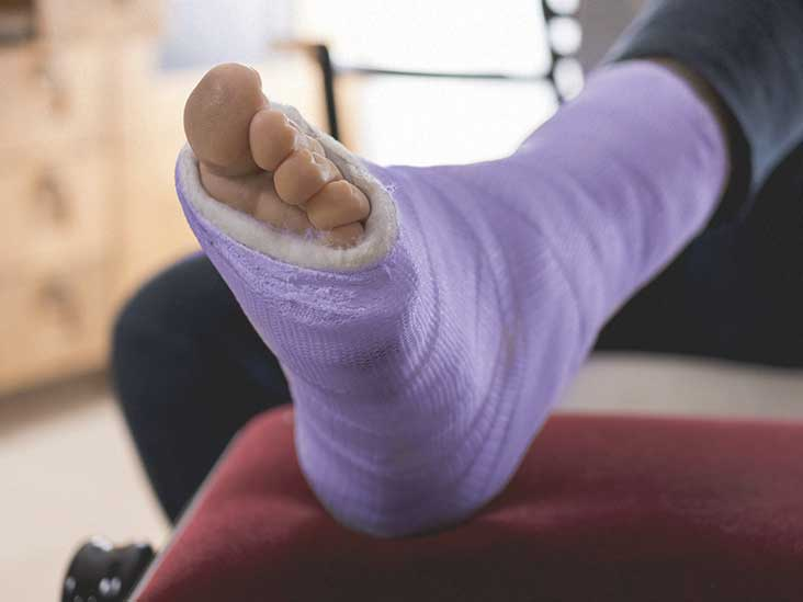 Hairline Fracture