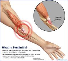 tendonitis vs tendinitis