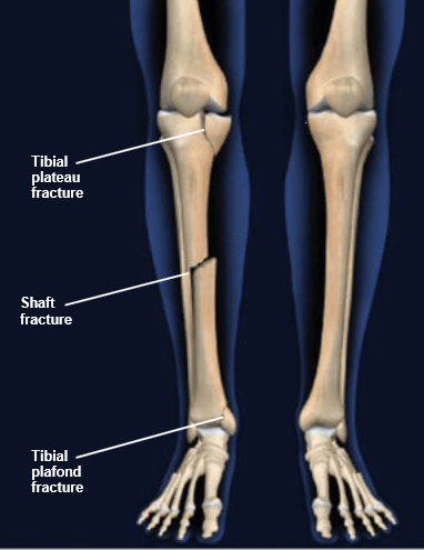 tibia fracture