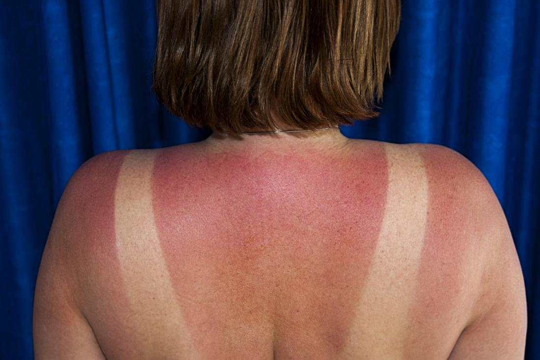 Why Sunburn Itches