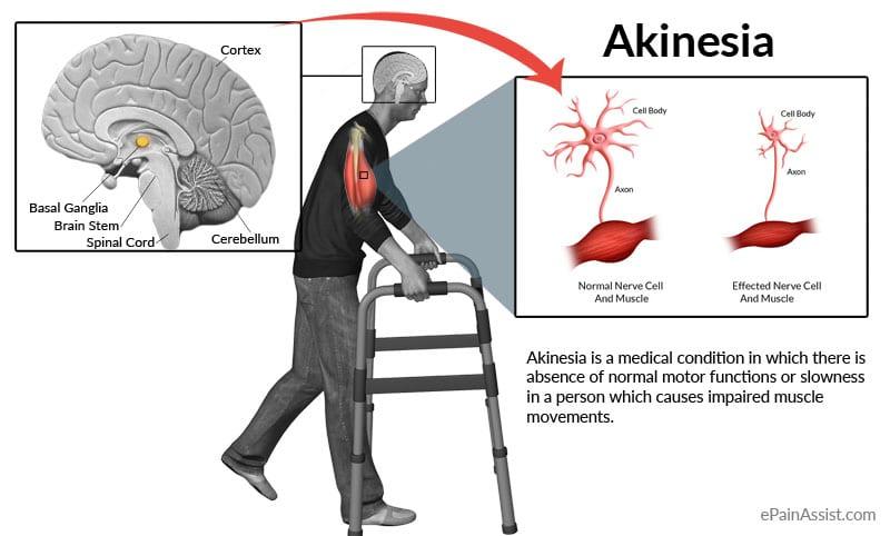 Akinesia