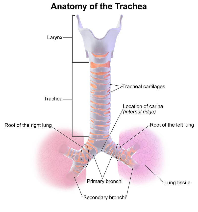 Tracheal Deviation
