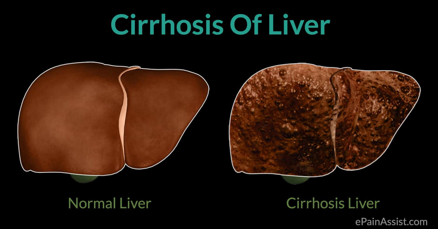 Where Is The Liver?