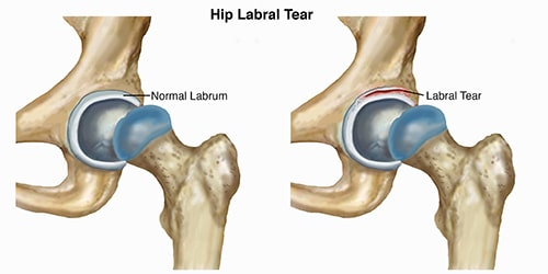 Torn Cartilage In The Hip