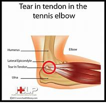 Torn Elbow Tendon