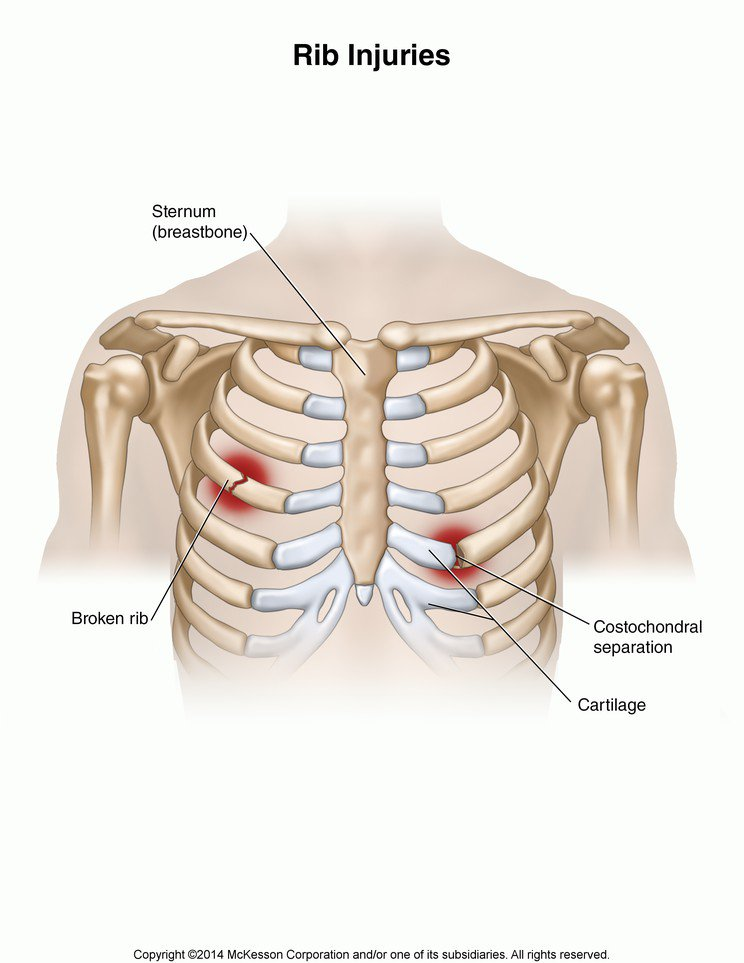 Torn Rib Cartilage