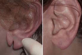 torn earlobe