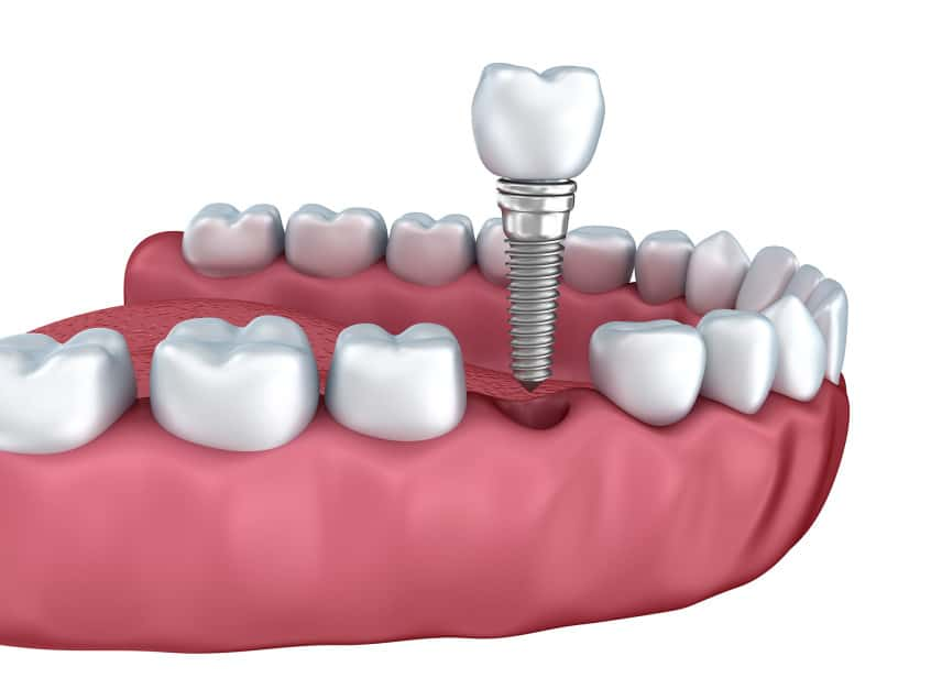 Tooth Extraction Overview