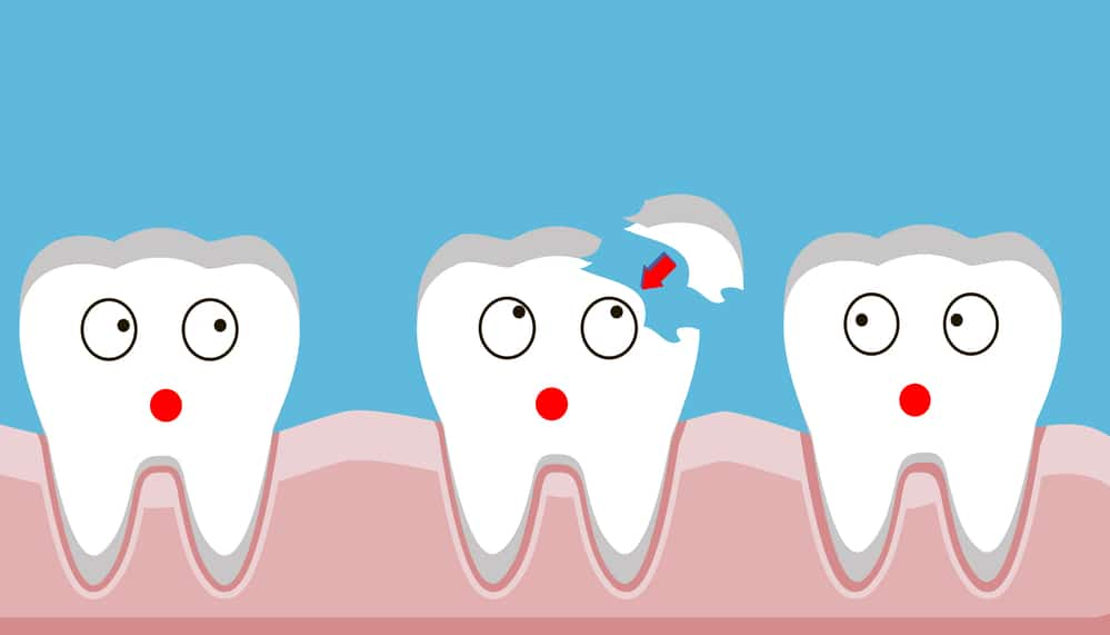 What To Do When You Chip A Tooth